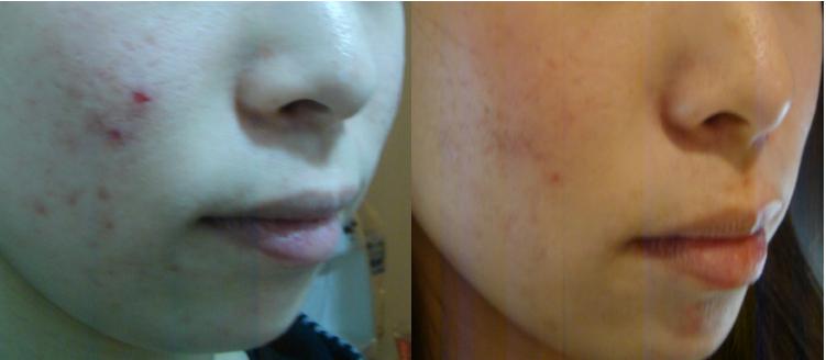 ルナメアACの効果がブログで話題!口コミでニキビ跡にも効果があると言われるルナメアACで潤い肌質を手に入れよう!